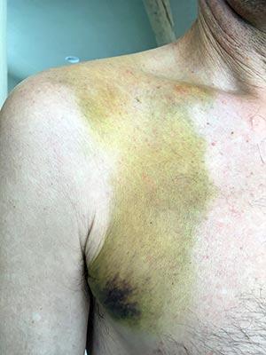 Broken collarbone, bruise