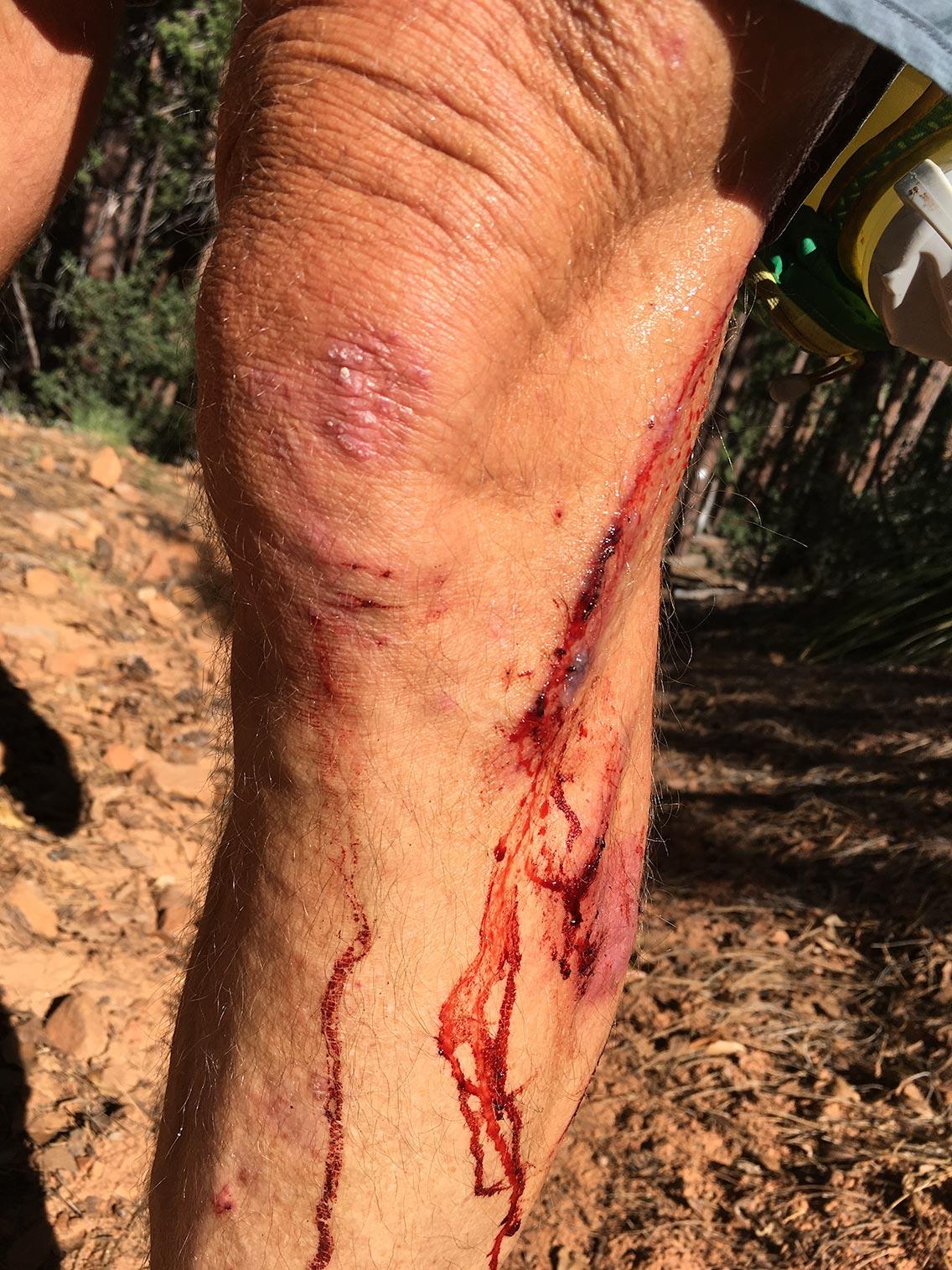 Bloody Leg
