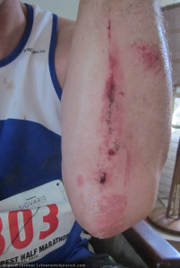 Valley Crest, scraped arm