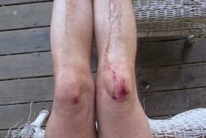 Valley Crest, knees, at home