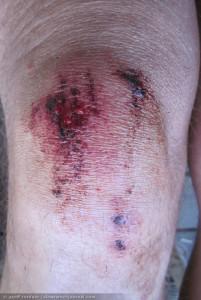 bloody knee