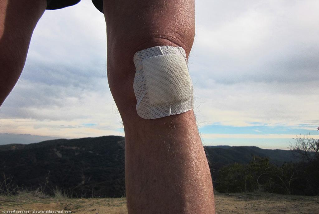 bandaged knee, Topanga