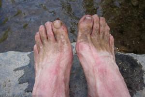 Postrace feet
