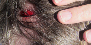 Head wound, 9 stitches