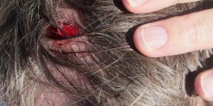 Head wound, 9 stitches